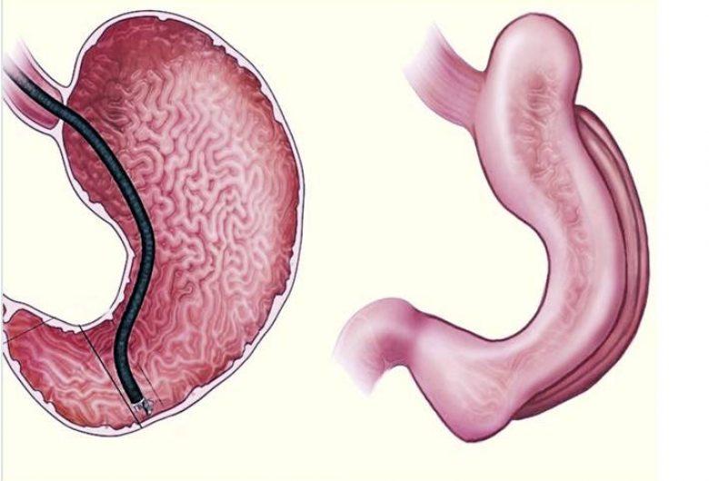 Quem pode realizar a Gastroplastia Endoscópica?
