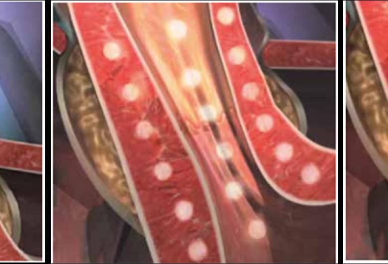 """Tratamento do Refluxo por Endoscopia """"Stretta""""- Como funciona e indicações"""